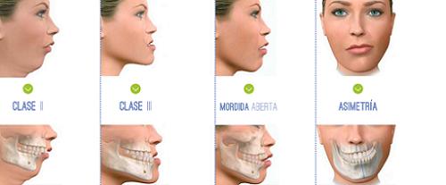 Resultado de imagen de cirugia maxilofacial