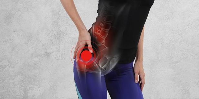dolor de cadera linear unit mujeres jovenes