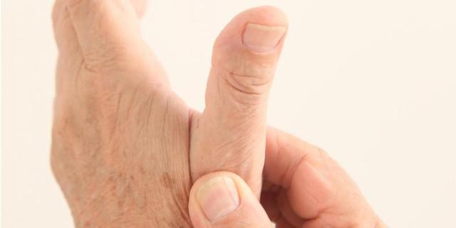 Artrosis del pulgar o rizartrosis: ¿Qué es y cuál es su tratamiento? -  Clínica Las Condes