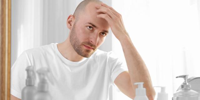 Implante de pelo: Tratamiento para la calvicie - Clínica Las Condes