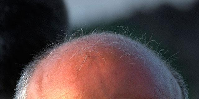 Implante capilar: una solución para la alopecia